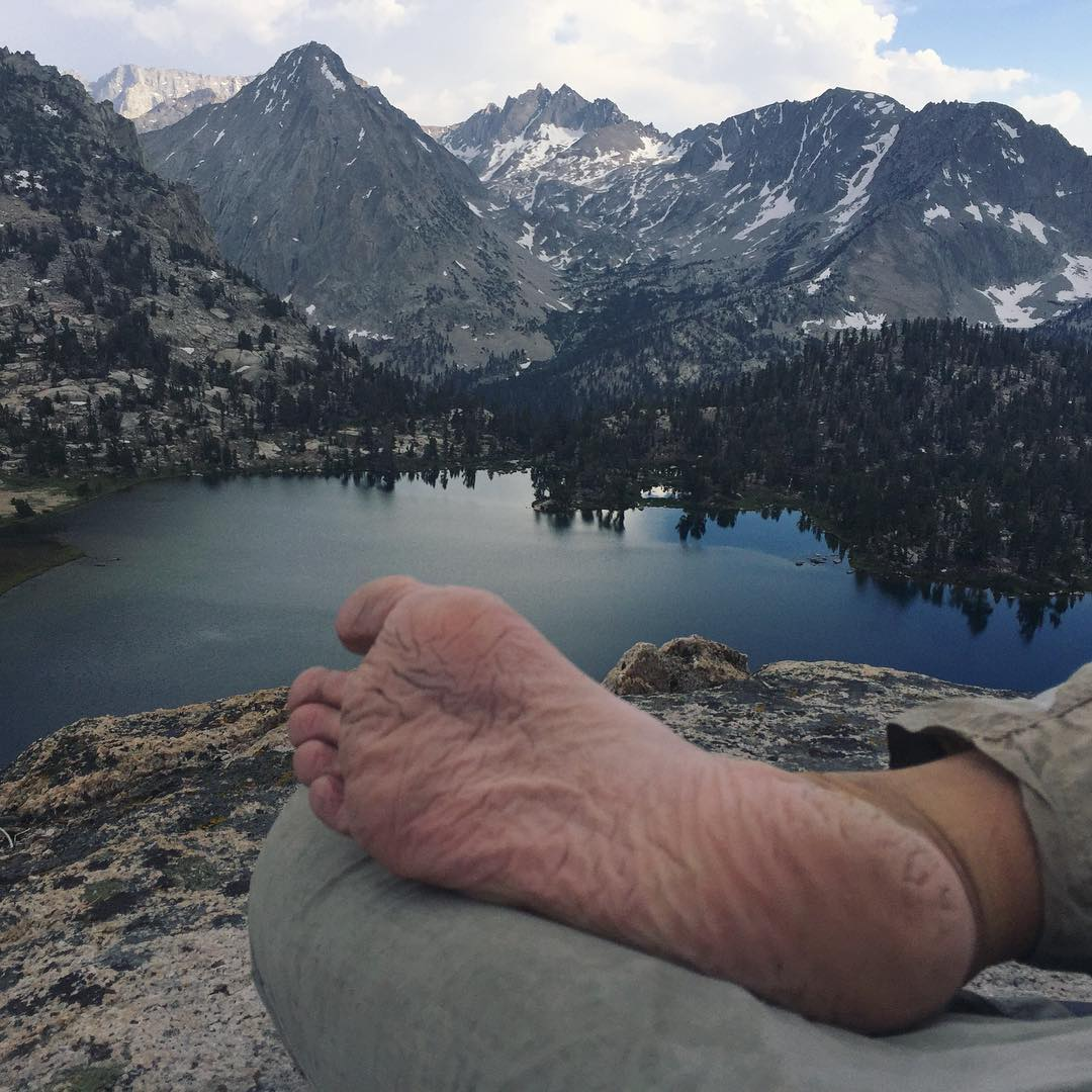 picture of sole of foot damaged by wet hiking